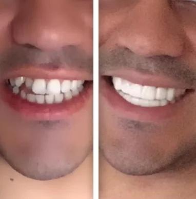 Dentier Amovible Réutilisable
