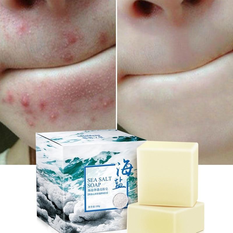 Savon Anti-acné Magique